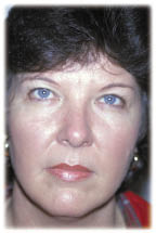 Before Blapharoplasty the eyelids are heavy giving a tired appearance